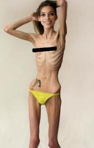 Anoreksia Mervosa