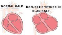 Konjestif Kalp Yetmezliği