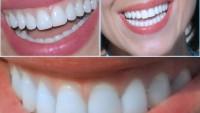 Bembeyaz ve Sağlıklı Dişlere Sahip Olabilirsiniz