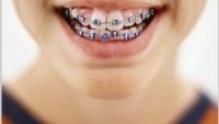 Dişlerin Gelişim Bozuklukları