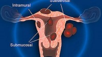 Myomektomi
