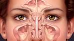 Sinüzit Belirtileri ve Tedavisi