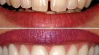 İstanbul diş hekimi
