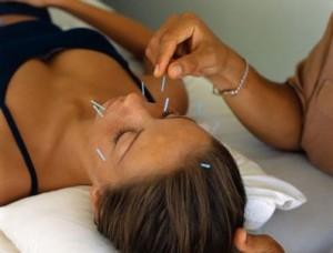 akupunkturla-zayiflama