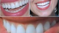 Diş Hekimi Bakırköy
