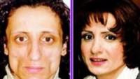 Şişli estetik cerrah, estetik ameliyat merkezleri