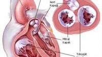 Kalp ve Damar Cerrahisi Doktoru Kadıköy