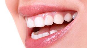 Diş Eti Çekilmesi Gülüşünüze Gölge Düşürmesin