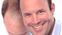 Dökülen Saçlarınız Fue Yöntemi ile Geri Geliyor