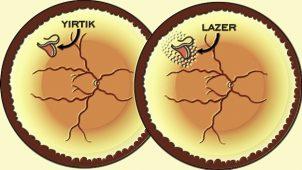 Gözünüzde Uçuşan Sinekleri Hafife Almayın Retina Dekolmanı Olabilirsiniz
