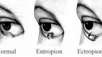 Ektropion Nedir ve Nasıl Tedavi Edilir