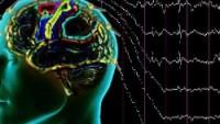 Zor Geçirilen Bir Nöbet Epilepsi