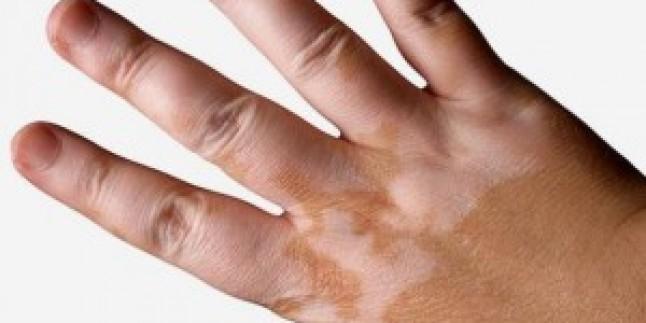 Vitiligo Hastalığı Nasıl Tedavi Edilir?
