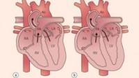 Kalbin Sinsi Düşmanı Mitral Kapak Hastalığı