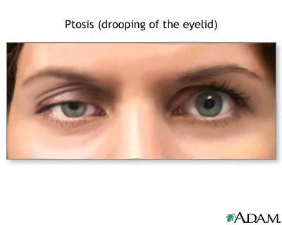 Роговица - окно в наши глаза, где преломляется свет, и измененные лучи проходят к зрительным анализаторам