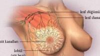 Fibrokist Tedavisi