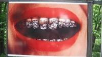 Ağız ve Diş Sağlığınız için Sigarasız Yaşam