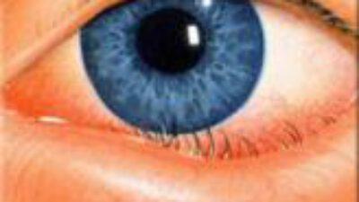 Gözkapağı Hastalıkları