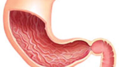 Mide Ameliyatı, gastrektomi
