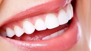 Dişlerinizdeki Tek Renk Beyaz Olsun