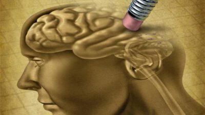 Alzheimer Hastalığındaki Bozulma Değişiklikleri